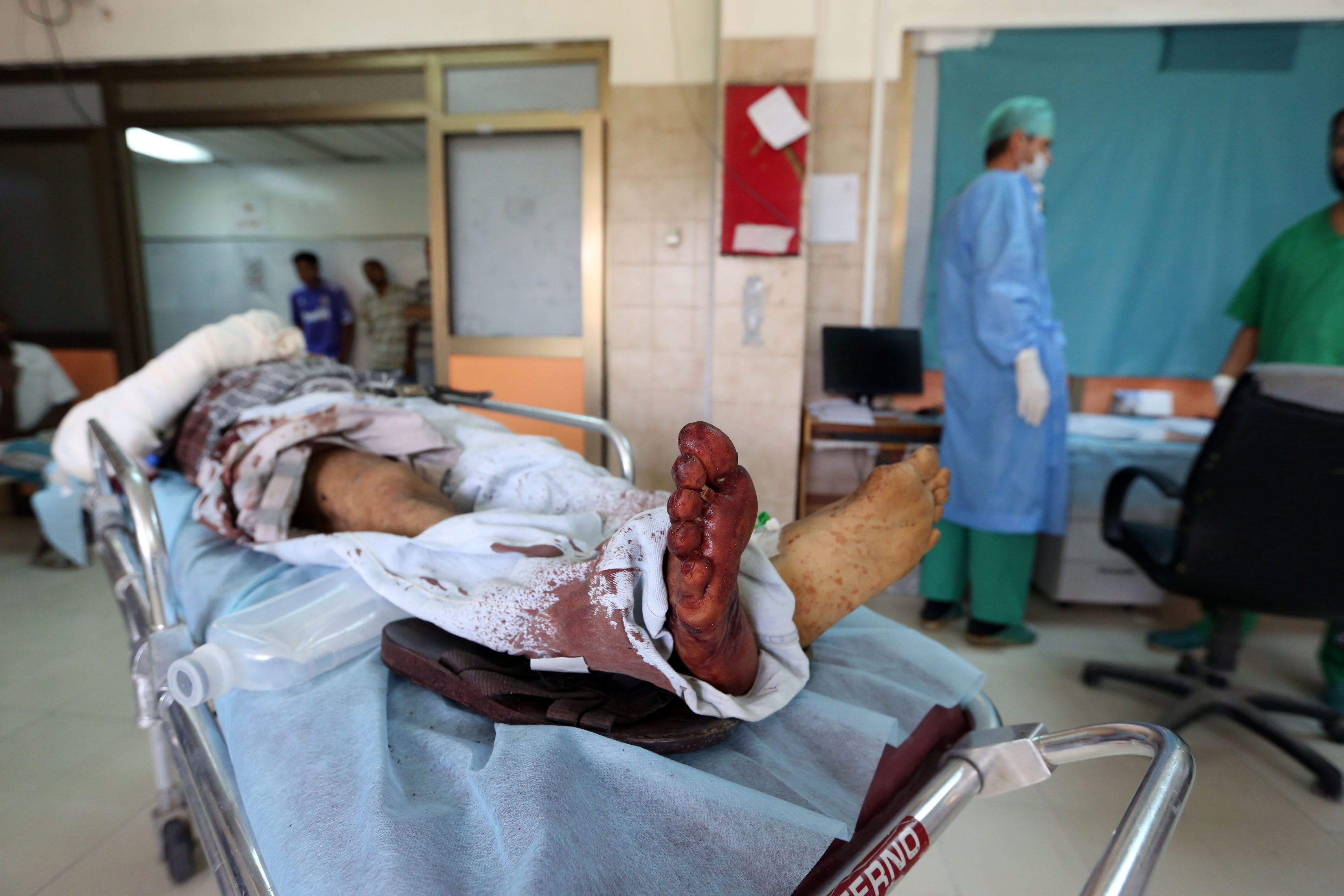 A 54 year old Tunisian citizen, identified as Mohammed bin Amer bin Saleh, receives treatment for serious wounds he sustained when a carbomb blew up in central Tripoli on 4 August. Gunbattles between youth allegedly competing for market place and a car blast sent a shudder through the Libyan capital, residents and security sources said, adding on person was wounded AFP PHOTO / MAHMUD TURKIA