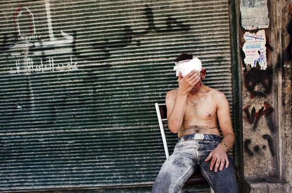 Syrian man wounded by shelling sits on a chair outside a closed shop in the Al-Muasalat area in Aleppo AFP PHOTO/ACHILLEAS ZAVALLIS