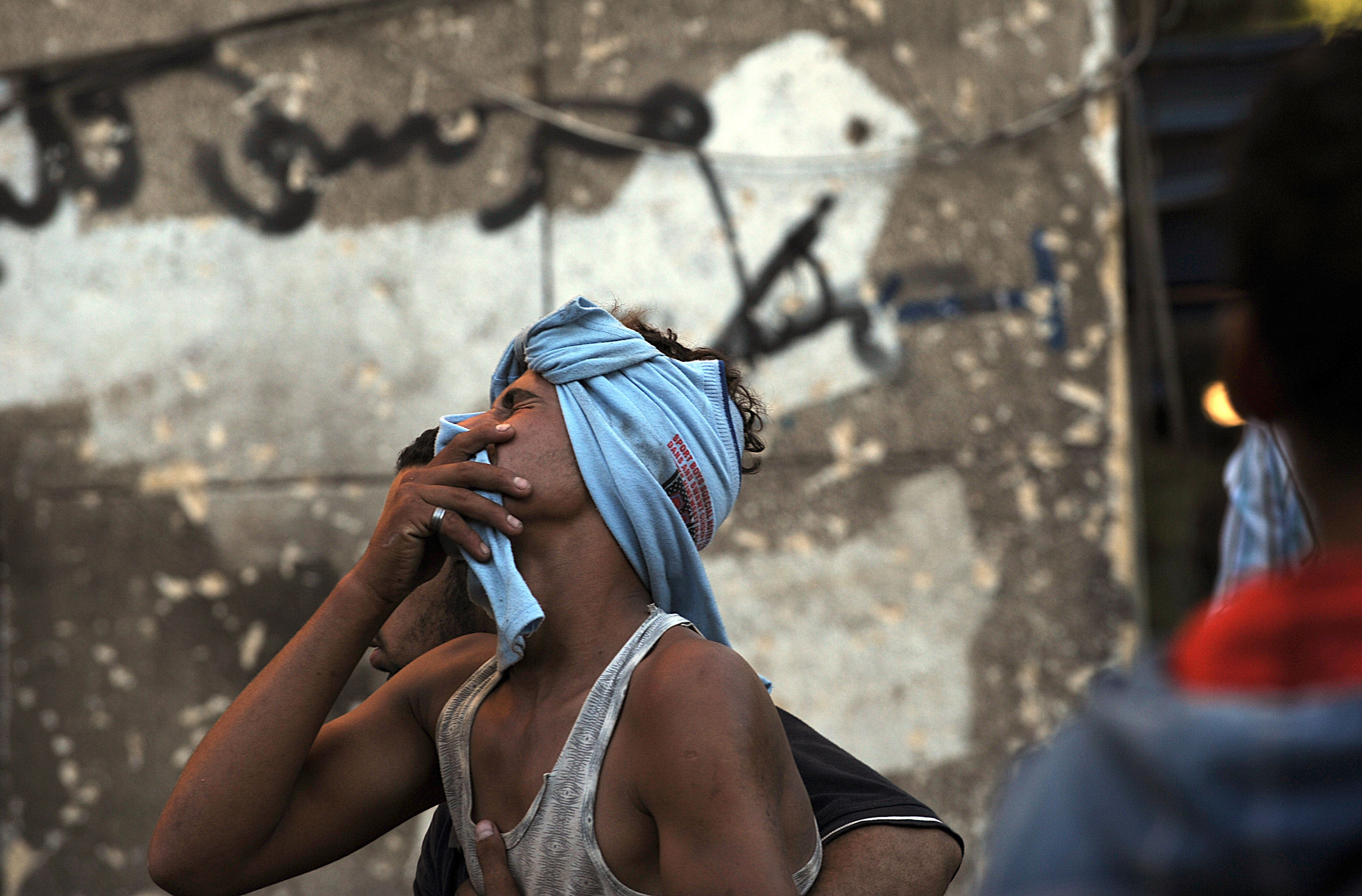 An egyptian pro-government supporter, is helped away after being injured during clashes with supporters of deposed Egyptian President Mohamed Mursi that erupted at Tahrir Square and around the US Embassy in Cairo, on July 22, 2013. (AFP Photo)