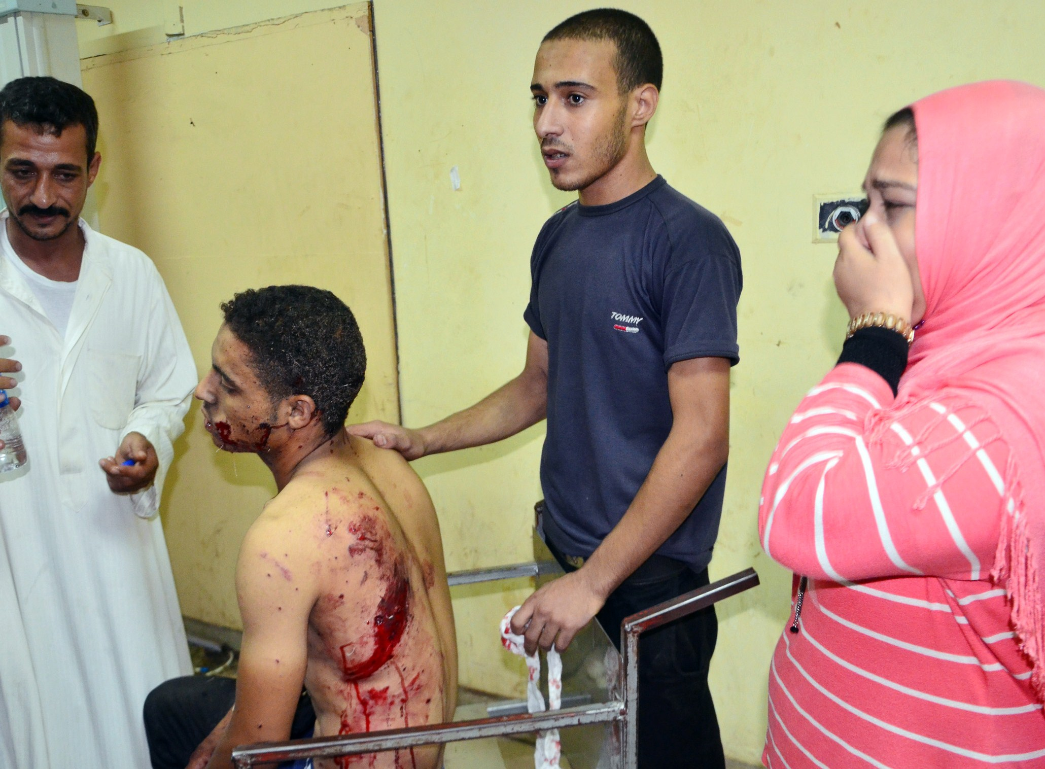 An injured man sits on a gurney following a grenade attack at the Dahqaliya police station in Mansura, the regional capital of Dahqaliya, on July 24, 2013.  (AFP Photo)