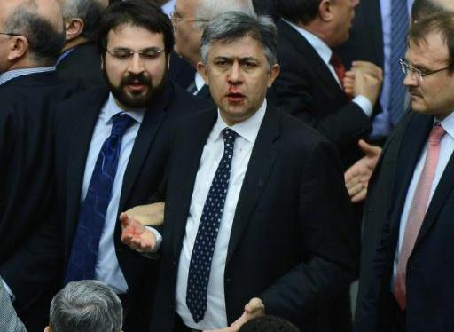 Main opposition Republican People's Party MP Ali Ihsan Kokturk's nose bleeds after scuffles with members of the ruling AK Party during a debate on a draft law on judicial appointments, at a parliamentary session in Ankara on February 15, 2014  (AFP Photo)