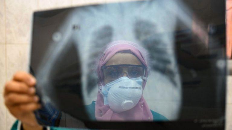 تتجاوز الإصابات اليومية بـ COVID-19 في مصر 400 إصابة لأول مرة في 4 أشهر