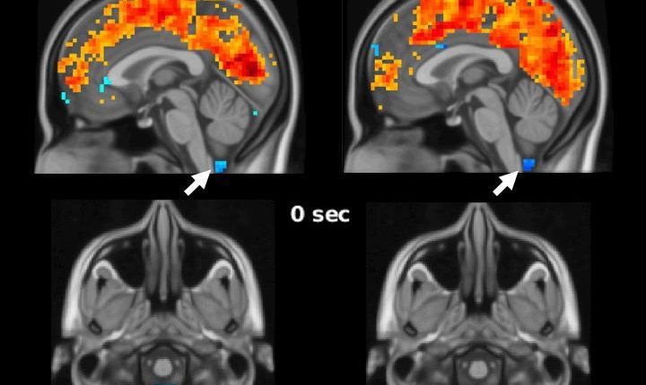 Sleep-related brain activity plays role in clearing toxic proteins, preventing Alzheimer's